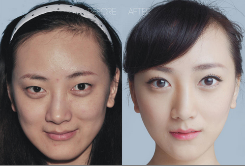 plastic surgery in China